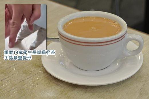 長期喝奶茶、吃垃圾食物 14歲少年尿酸過高致手指變形